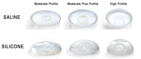 silcone vs saline implants